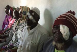 emsimision-operats-cataractes
